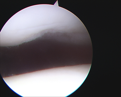Patella Arthroscopic Chondroplasty