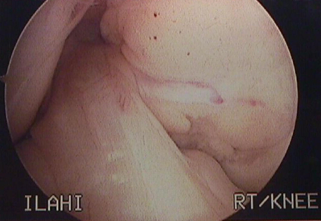 Anterior Cruciate Ligament - ACL